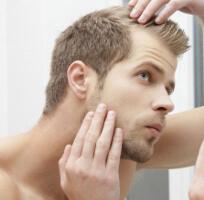 Prevenir la alopecia masculina