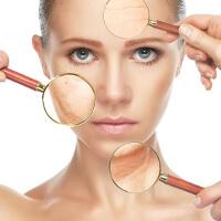 Rejuvenecimiento de la piel