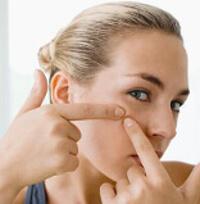Consejos sobre el acné