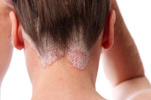 Psoriasis en la cabeza