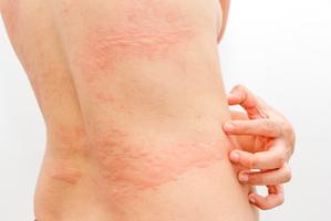 Urticaria en la piel