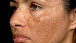 Manchas cutáneas en la cara