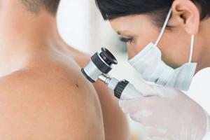 clínica dermatológica barcelona