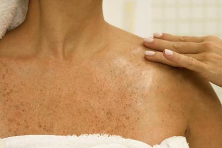 quitar manchas en la piel