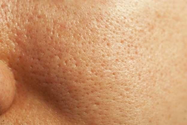 poros piel